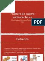 Fx de Cadera Subtrocanterica
