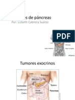 20110516 Tumores Pancreas