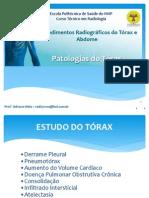 PATOLOGIAS DO TÓRAX (1)