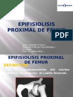 Epifisiolisis Proximal de Femur