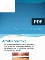 Síndrome de Reiter