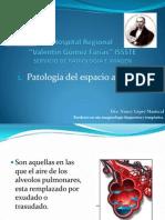 Patología del espacio alveolar