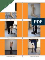 Prótesis y ortesis