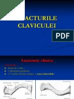 07.FRACTURILE CLAVICULEI
