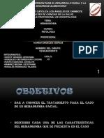 Hemangioma Yajaira Rosales IV Ciclo Odontologia