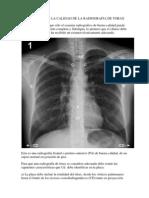 calificaciondelacalidaddelaradiografiadetorax-120121144840-phpapp01