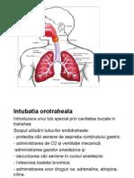 Intubatia orotraheala IOT