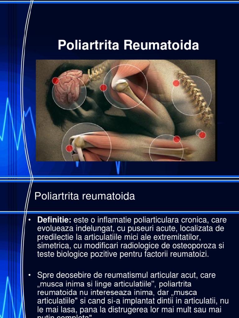 poliartrita tratament biologic peptide în tratamentul articulațiilor