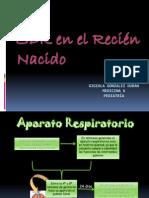 SDR en Neonatos Gigiola