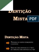 Ortodontia - Dentição mista graduação