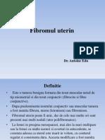 30. Fibromul uterin.final.pptx