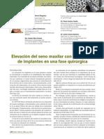 238 CASO CLINICO Elevacion Seno Maxilar