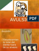 AVULSIÓN ppt alex