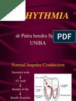 aritmia 2-7-13_2.ppt