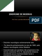 Aula Sindrome de Moebius