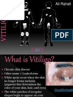 vitiligo.ppt