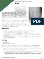 Splinter hemorrhage - Wikipedia, the free encyclopedia.pdf