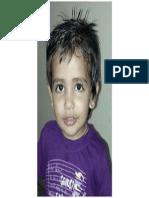 Anshu Bhatija.pptx