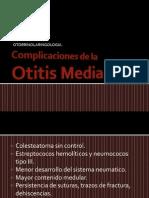 Complicaciones de Otitis Media.