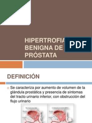 y adenosis benigna de próstata tumoral