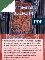 enfermedad_crohn EXPOSICION