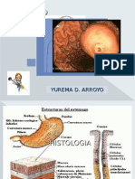 Cancer Gastrico MonsTruosa