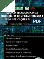 Avanços TC Brasileiro