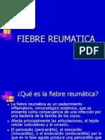 Tema 9 Fiebre Reumatica