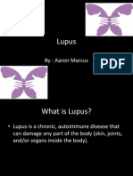 Lupus Power Point Fact Sheet