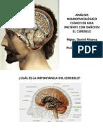 ALVAREZ y FLORES (UCSM-ACAP, 2013) Analisis Neuropsicologico Clinico de una paciente con daño en el cerebelo - copia