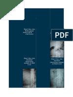 ileus radiology.docx
