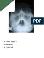 Radiologi Cranium
