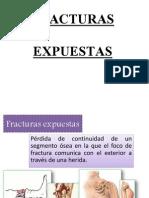 fracturasexpuestas-130720200634-phpapp01.pptx