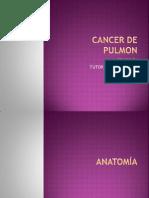 CANCER pulmon.pptx
