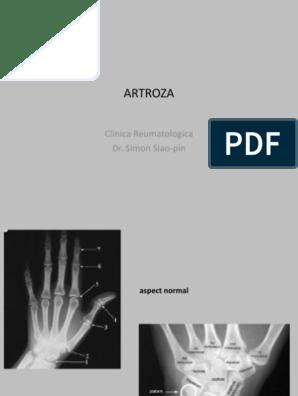 Artroza radială ce este
