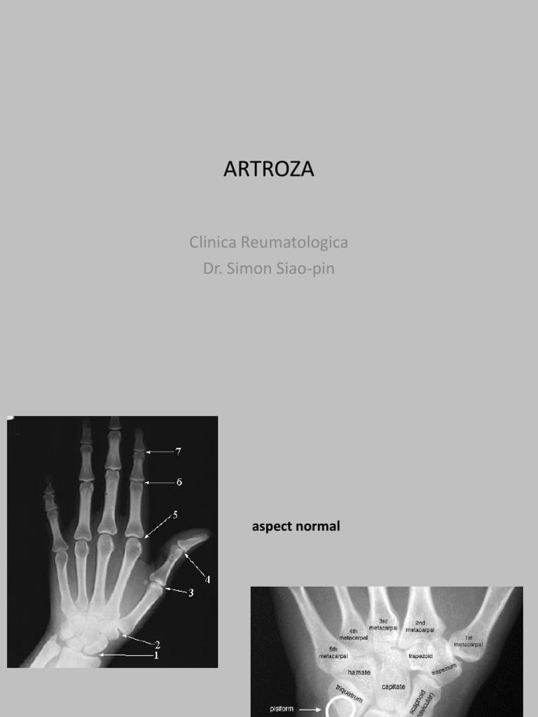 meniu de probă pentru artroza articulațiilor