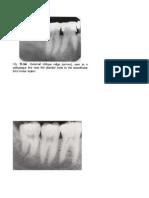 3.Gambaran Normal Jar.pendukung Gigi