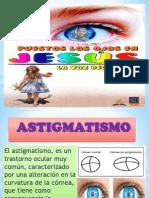 Astigmatism o