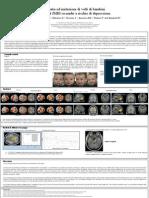 Empatia ed imitazione di volti di bambini. Studio di fMRI su madri a rischio di depressione.