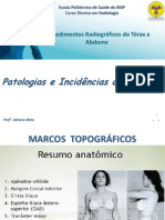 INCIDÊNCIAS E PATOLOGIAS DO ABDOME
