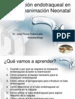 Intubación endotraqueal RN