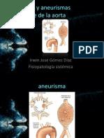 Aneurisma y Aneurismas Disecante de La Aorta