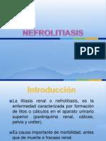 nefrolitiasis