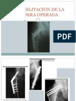 Rehabiliatacion de La Cadera Operada