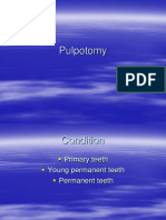 Presentation1 pulpotomi