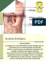 Acalasia esofagica