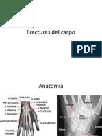 Fracturas Del Carpo