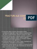 Fractura osului zigomatic