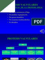 protesis_valvulares