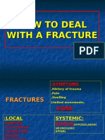 How to Deal With Fractures.www.1aim.net